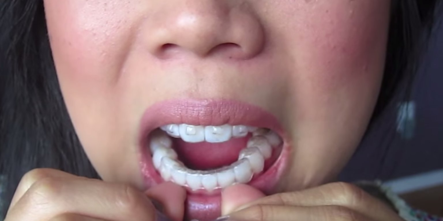Invisalign just conducted a global ad agency review as it looks to ramp up its marketing to fend off rivals like SmileDirectClub