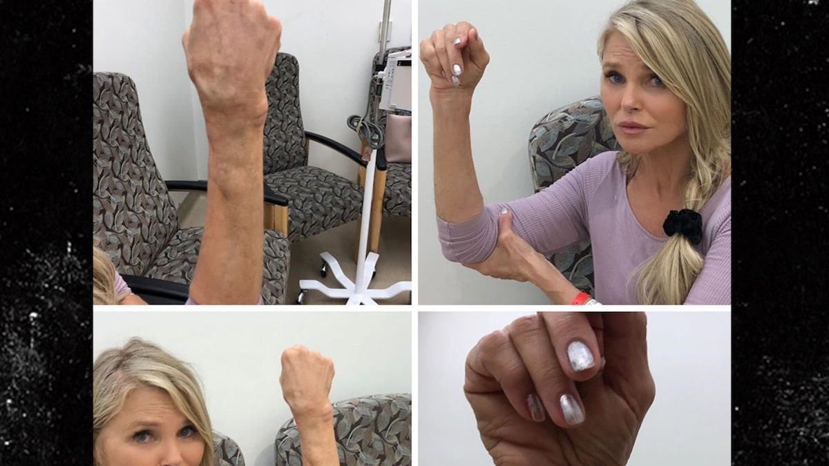 Christie Brinkley Shares Gnarly Images of 'DWTS' Wrist Injury