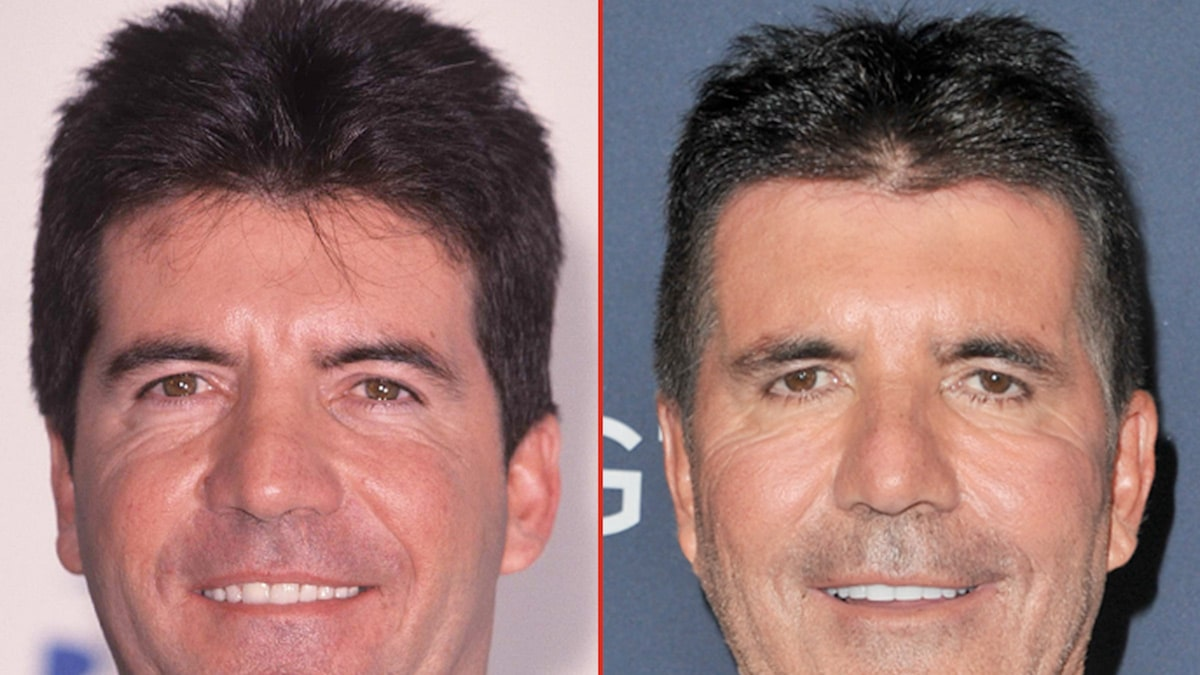Simon Cowell — Good Genes or Good Docs?!