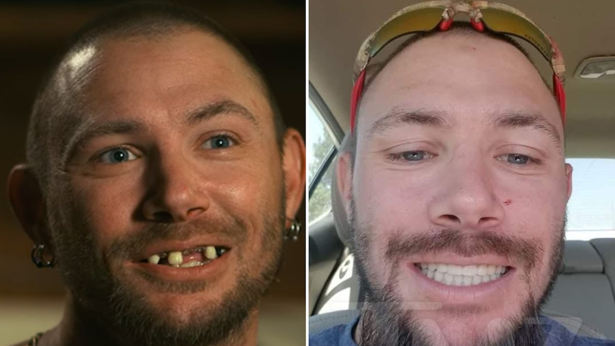 'Tiger King' Star John Finlay Got New Teeth, Has Some Issues with Netflix
